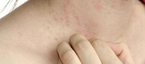 La instrucción para los padres con atopicheskim por la dermatitis