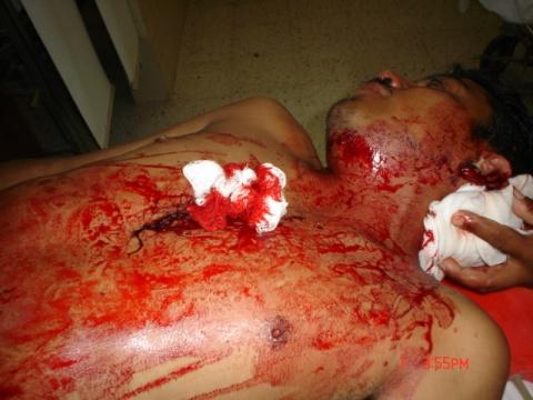 Cuidado asesino por las calles!! - jose miguel F1-las%20lesiones%20mortales